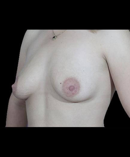 Before Breast Implant Surgery Image