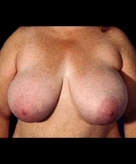 Before Breast Reduction Front Image