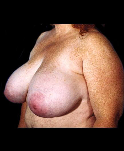 Breast Reduction Surgery Before