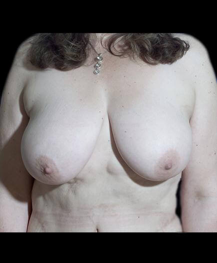 Breast Reduction Surgery Before Photo
