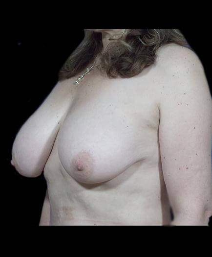 Reduction Mammoplasty Before Photo