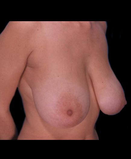 Virginia Reduction Mammoplasty Before Photo