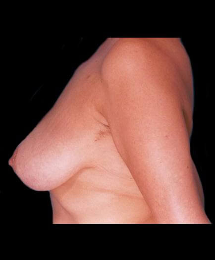 Reduction Mammoplasty Surgery Before Photo