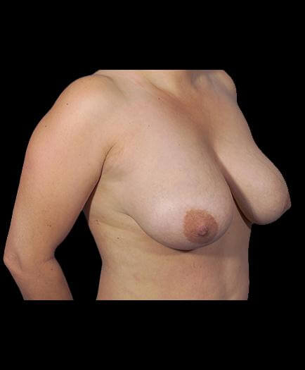Breast Reduction Before Right Side Image