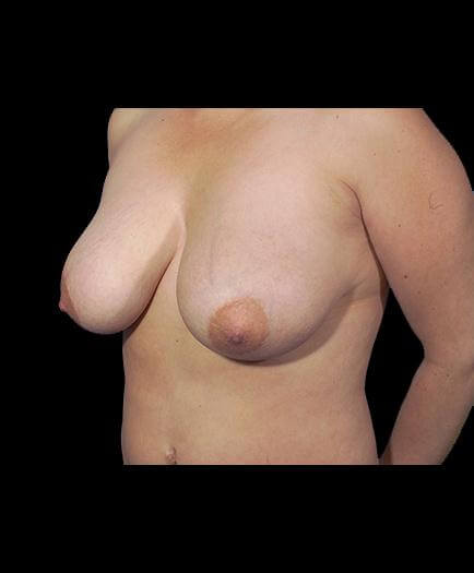 Breast Reduction Before Left Side Image