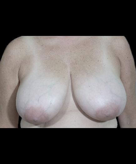 Virginia Reduction Mammoplasty Surgery Before Photo