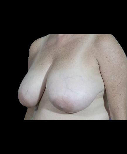 Reduction Mammoplasty Before Image