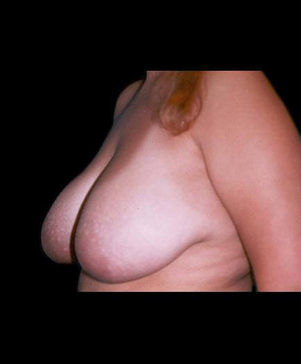 Virginia Reduction Mammoplasty Before Image