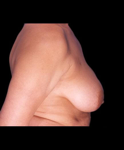 Reduction Mammoplasty Surgery Before Image