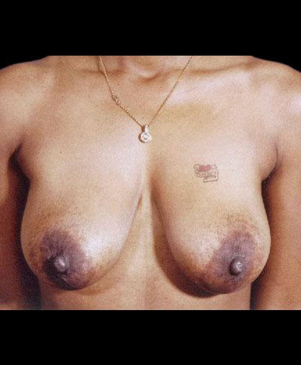 Breast Lift Before Image