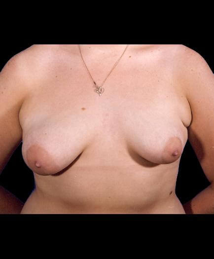 Breast Lift Surgery Before Image