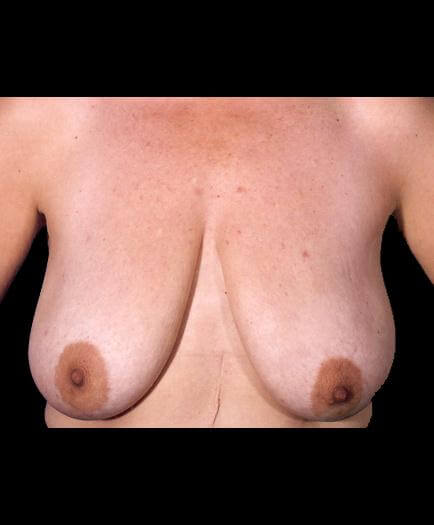 Breast Lift Surgery Before Picture