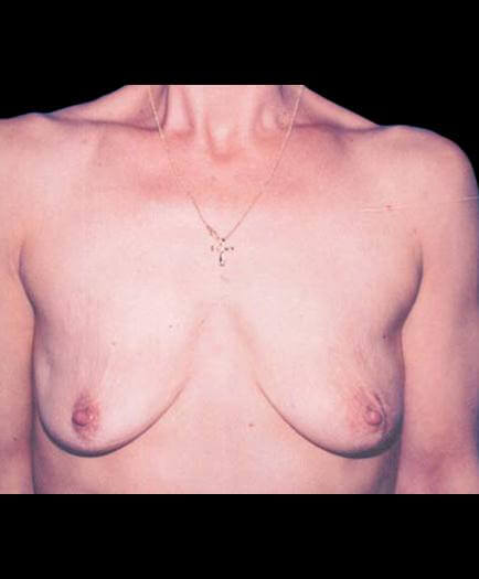 Breast Reconstruction Before Photo