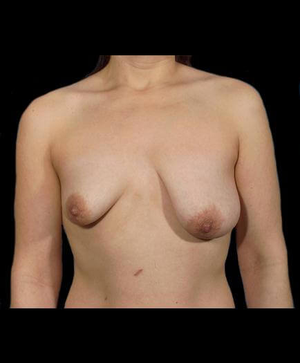 Breast Asymmetry Front View Before