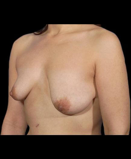 Breast Asymmetry Quarter View Before
