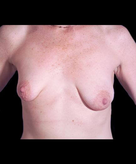 Breast Asymmetry Surgery Front View Before