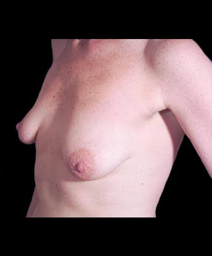 Breast Asymmetry Surgery Quarter View Before