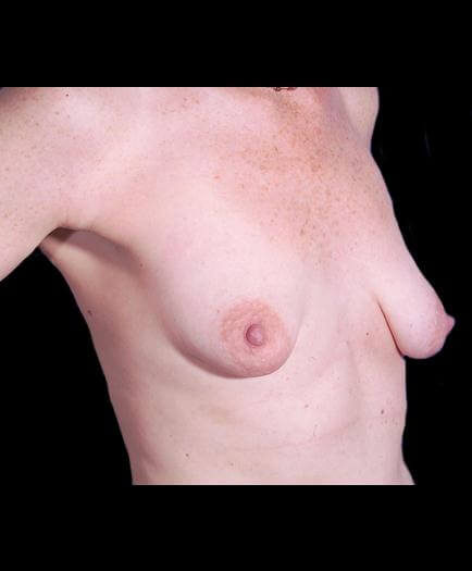 Breast Asymmetry Surgery Before