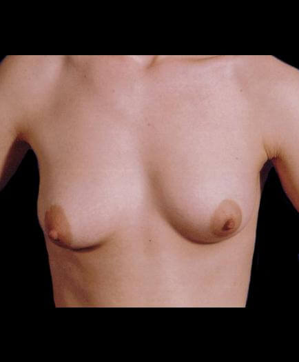 Breast Asymmetry Correction Front View Before