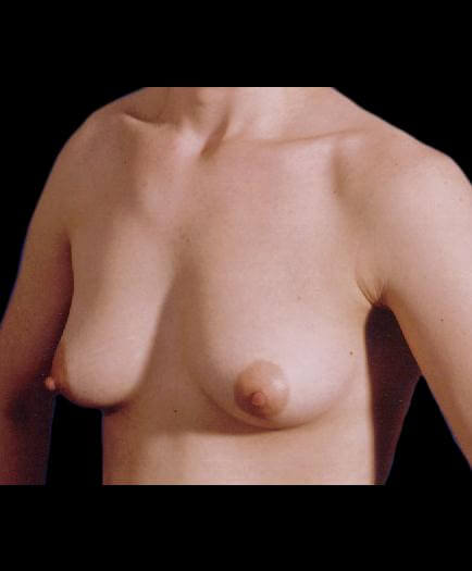 Breast Asymmetry Correction Quarter View Before
