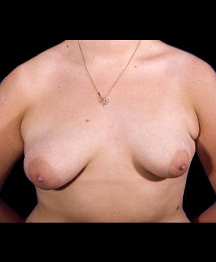 Asymmetrical Breast Front View Before
