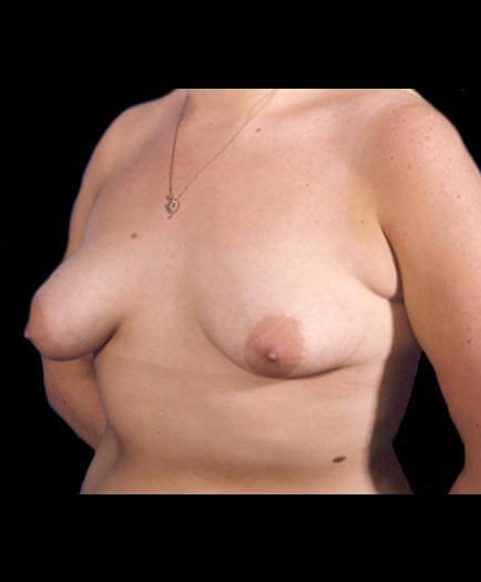 Asymmetrical Breast Before