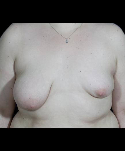 Asymmetrical Breast Surgery Front View Before