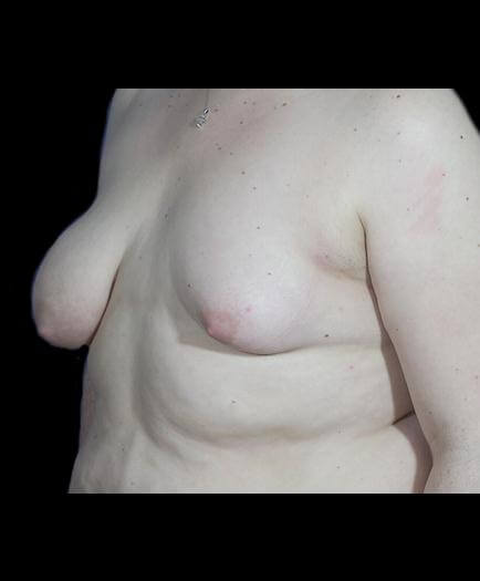 Asymmetrical Breast Surgery Quarter View Before