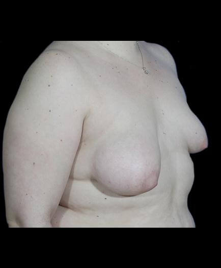 Asymmetrical Breast Surgery Before