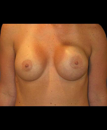 Asymmetrical Breast Correction Front View Before