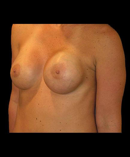 Asymmetrical Breast Correction Quarter View Before