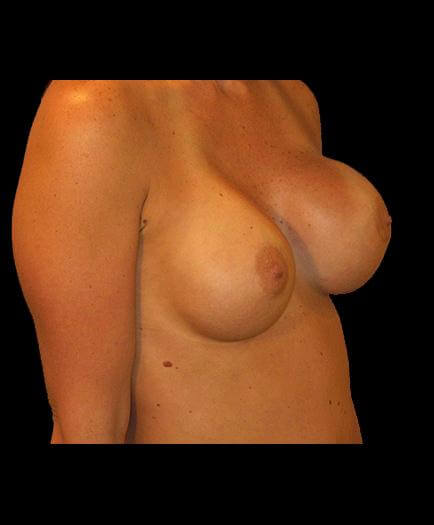 Asymmetrical Breast Correction Before