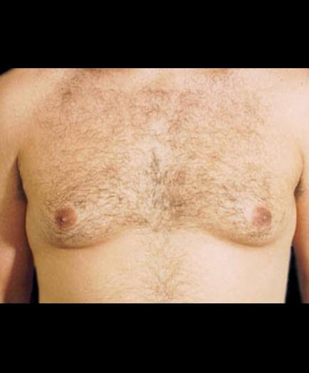 Gynecomastia Surgery Before
