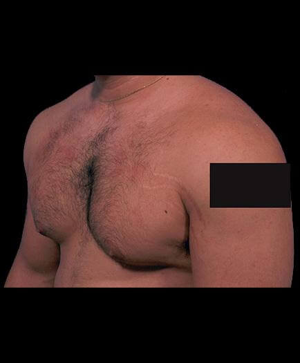 Before Male Breast Reduction Surgery