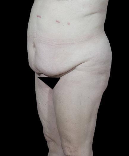 Abdominoplasty Before