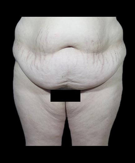 Tummy Tuck & Lipo Front View Before