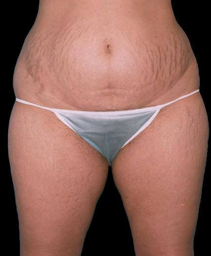 Female Tummy Tuck Before