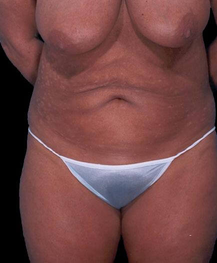 Tummy Tuck For Women Before