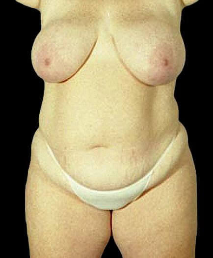 Women's Tummy Tuck Front View Before