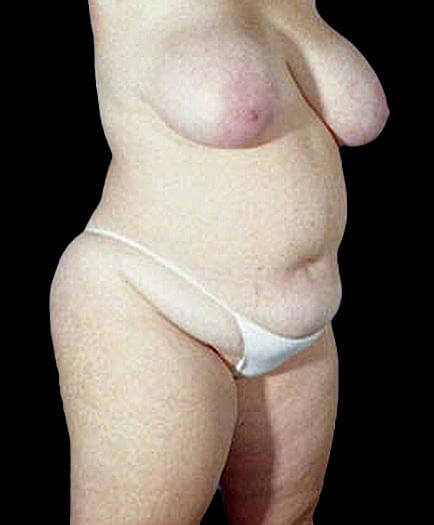 Women's Tummy Tuck Before