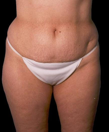 Body Contouring & Lipo Before