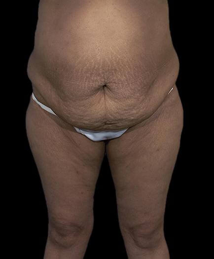 Abdominoplasty & Lipo Front View Before