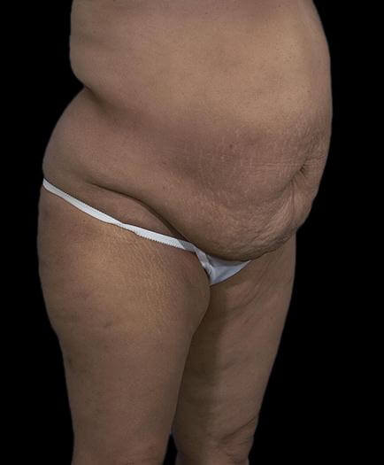 Abdominoplasty & Lipo Quarter View Before