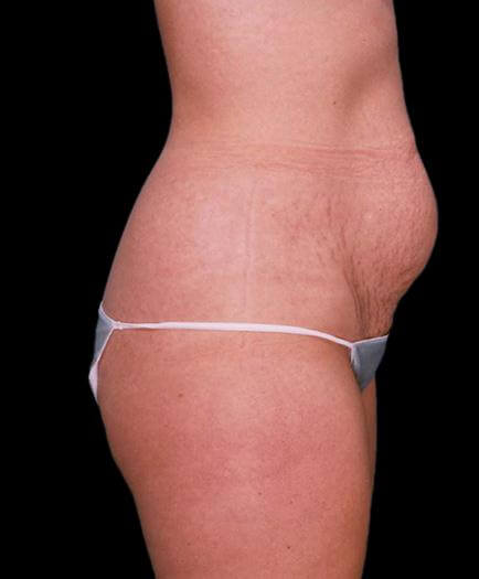 Abdominoplasty & Lipo Side View Before