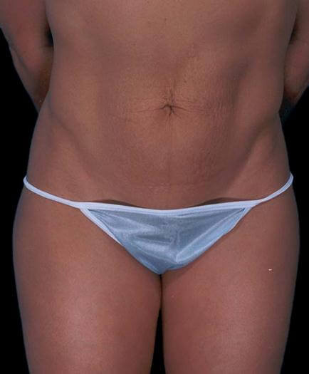 Women's Tummy Tuck Surgery Before