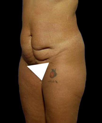 Before Tummy Tuck Surgery