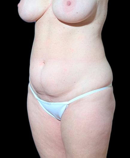 Before Abdominoplasty Surgery
