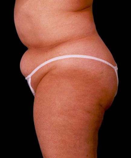 Before Abdominoplasty Surgery Side View