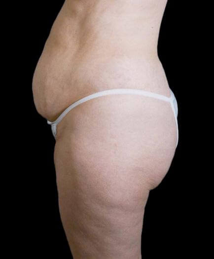 Stomach Lipo & Tummy Tuck Side View Before