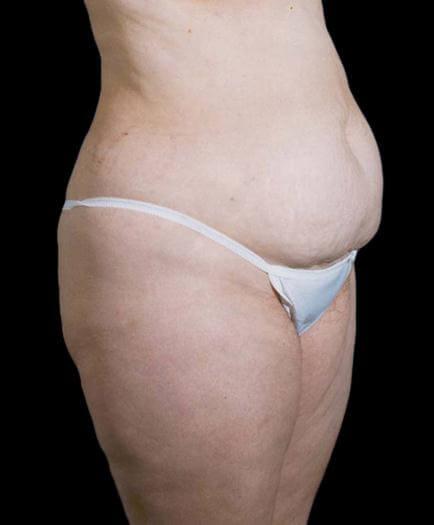 Stomach Lipo & Tummy Tuck Quarter View Before